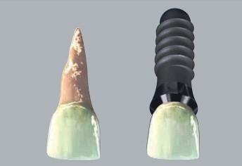 Porovnání normálního zubu (vlevo) a zubního implantátu (vpravo), zdroj: wikipedia.org